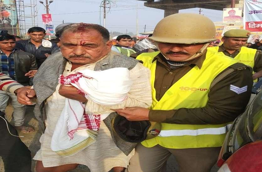 कुंभ में नागा साधुओं ने चिमटे से हमला कर श्रद्दालु का सिर फोड़ा, अस्पताल में शुरू हुआ ईलाज