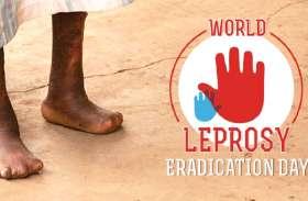 विश्व कुष्ठ दिवस: कुष्ठ मुक्त भारत बनाने को लेकर निकाली गई रैली