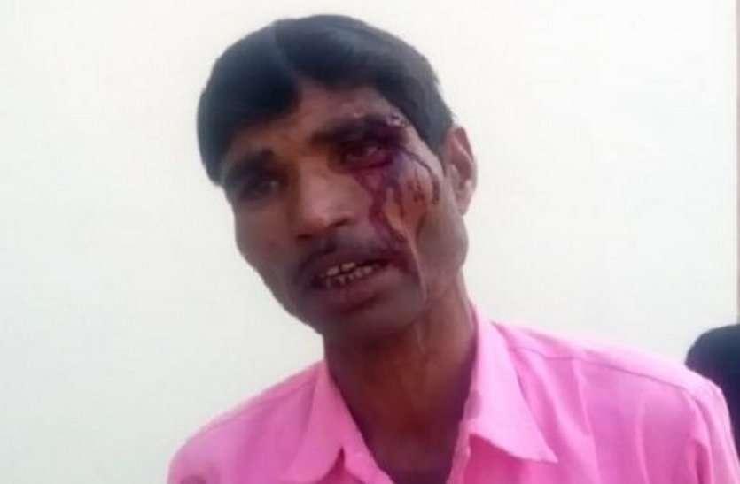 बदमाश कर रहा था किशोरी का अपहरण, बचाने दौड़ा पिता तो कर दिया जानलेवा हमला, देखें वीडियो