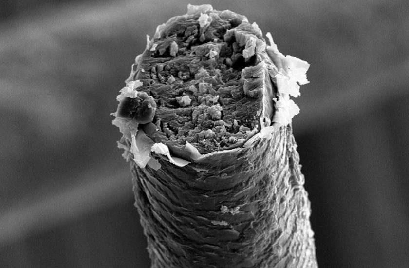 Microscopic image of hair