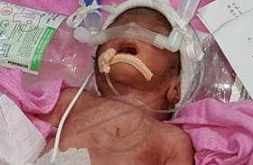 जन्म के दो घंटे बाद ही पालने में छोड़ गए नवजात पूर्णिमा को, हालत नाजुक