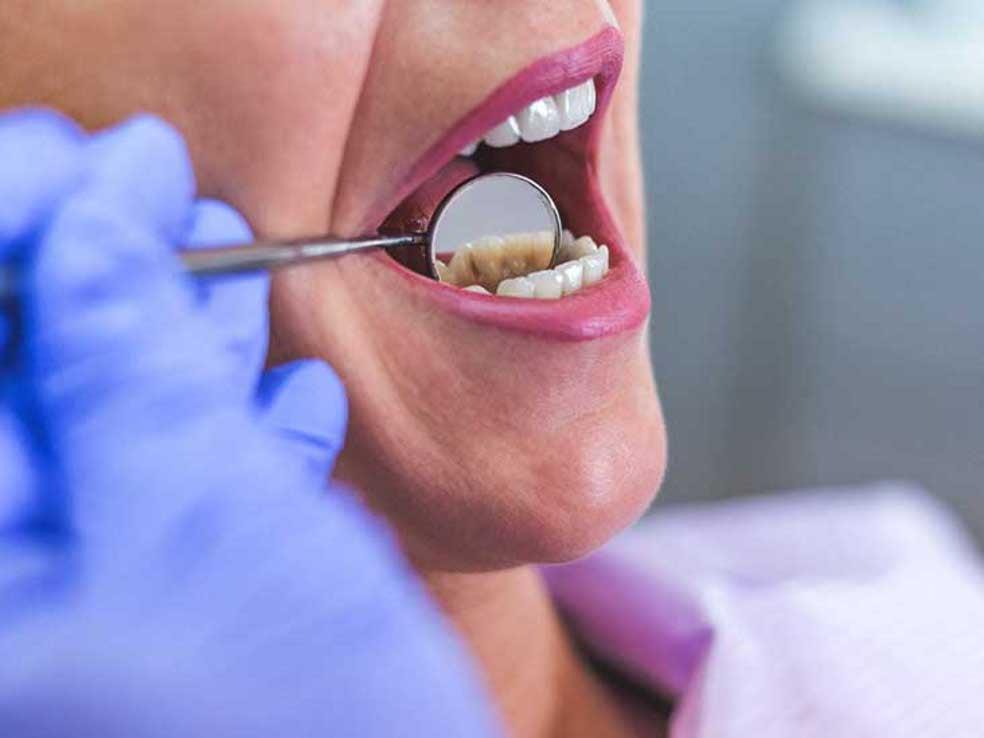 तनाव पर पड़ रहा है दांतों का असर, अस्पतालों में प्रतिदिन आ रहे चार-सौ से पांच सौ मरीज