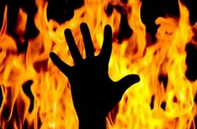पत्नी ने पति को ज़िंदा जलाया, अस्पताल में भर्ती