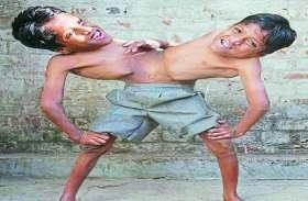 इन जुड़वा भाइयों को देखने विदेशों से भी पहुंचे लोग, लेकिन अब भी है मदद का इंतजार