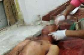 Breaking : होली त्योहार के एक दिन पहले पिता ने किया बेटे पर चाकू से जानलेवा हमला, गंभीर