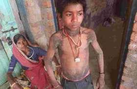 बच्चों में फैल रहा चर्म रोग