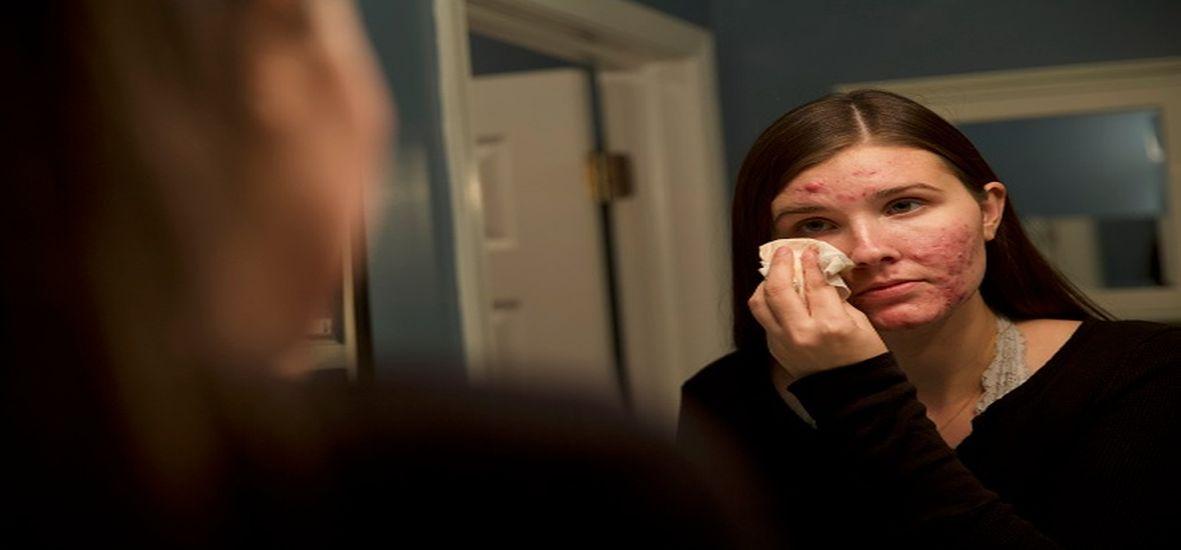 अचानक खुजली, चकत्ते व जुकाम की वजह क्या है?