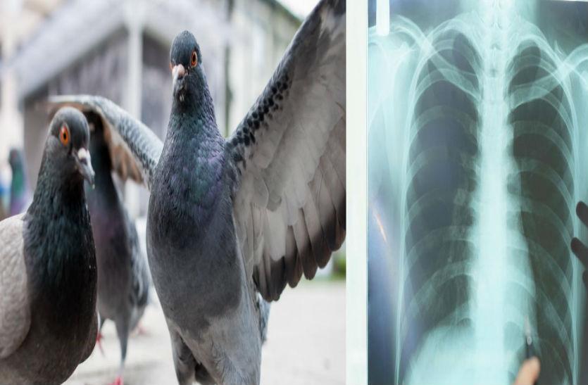 अगर आपके भी आसपास रहते हैं कबूतर तो समझिए इस जानलेवा बीमारी का खतरा सिर पर मंडरा रहा है...
