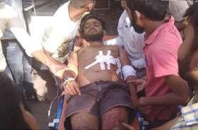 UP के प्रतापगढ़ में बाइक सवार अपराधियों ने युवक को दौड़ा दौड़ाकर मारी गोली