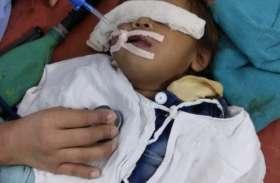 आठ माह की बच्ची की आहार नली में फंसी बैग की टूटी चेन, डॉक्टरों ने ऐसे बचाई जान