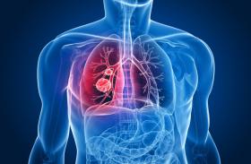 एक्सपर्ट इंटरव्यू: तम्बाकू से करें तौबा, दूर रहेगा कैंसर