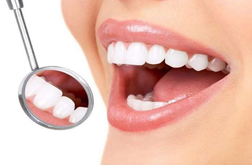 यूं रहेगी दांतों की चमक बरकरार