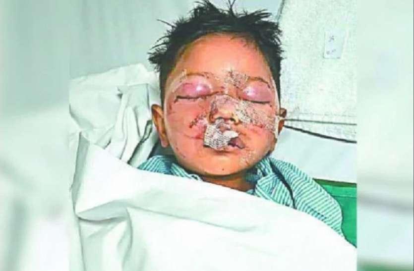 नर्सरी में लहूलुहान मिला 4 साल का मासूम, बोला- मुझे बचा लो अंकल, पहचानने में कीजिए मदद