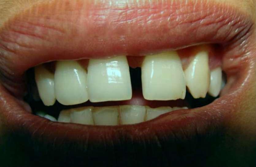 दांतों में ये गैप आपके बारे में सब कुछ बता देंगे