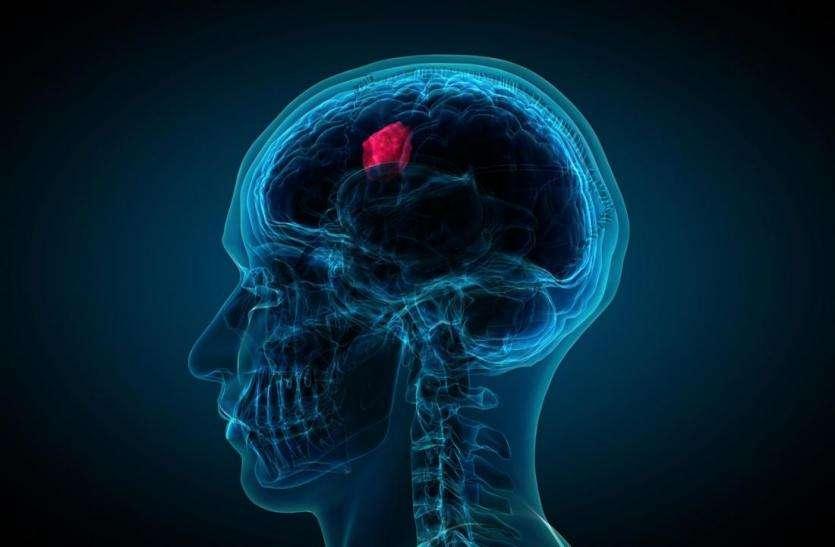 सिर में बार-बार दर्द तो नहीं बरते लापरवाही