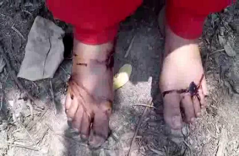 प्रेमी के पास न जा सके इसॉलिए हथौड़े से कुचल दिए बेटी के पैर और काट दी चोटी