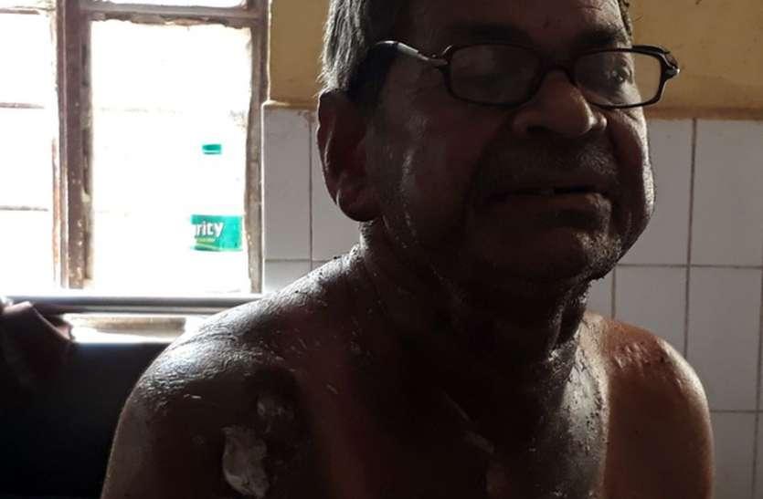 ओएमजी दुक़ान खाली कराने के लिए किरायेदार पर तारपीन का तेल उड़ेल लगाई आग, लोगों की तत्परता से बच गई जान