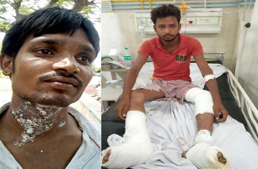 video: आधे घंटे तक सौ घरों में दौड़ता रहा करंट, झुलसने से आधा दर्जन हुए घायल, गंभीर हालत में दम्पती को किया जयपुर रैफर