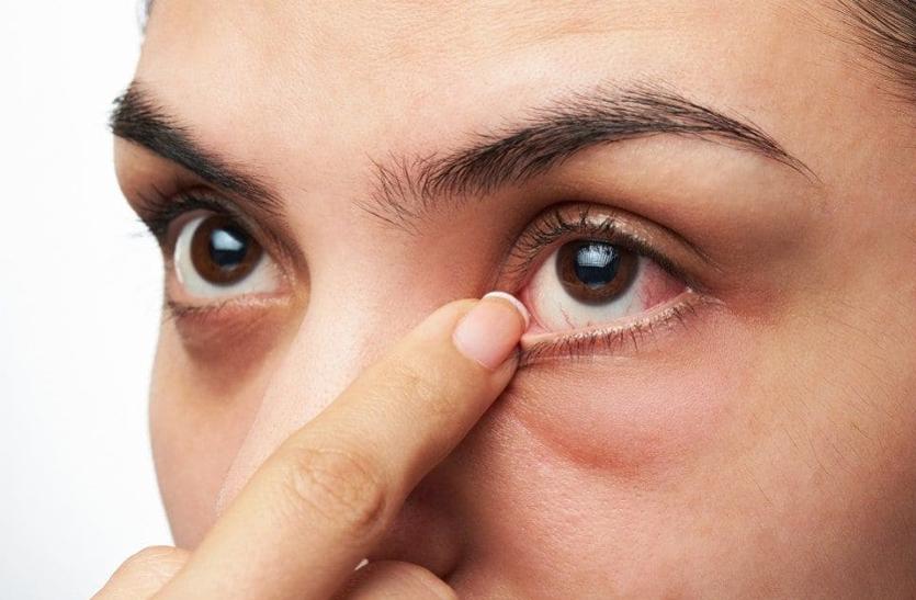 आंखें फड़कना शगुन-अपशगुन नहीं, हो सकते हैं ये कारण