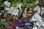 SKMCH नर कंकाल मामले का सच आया सामने, सीएम के दौरे से पूर्व जला दी गईं थीं लावारिस लाशें