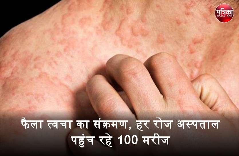 Skin infection : बांसवाड़ा में फैला त्वचा का संक्रमण, हर रोज अस्पताल पहुंच रहे 100 मरीज