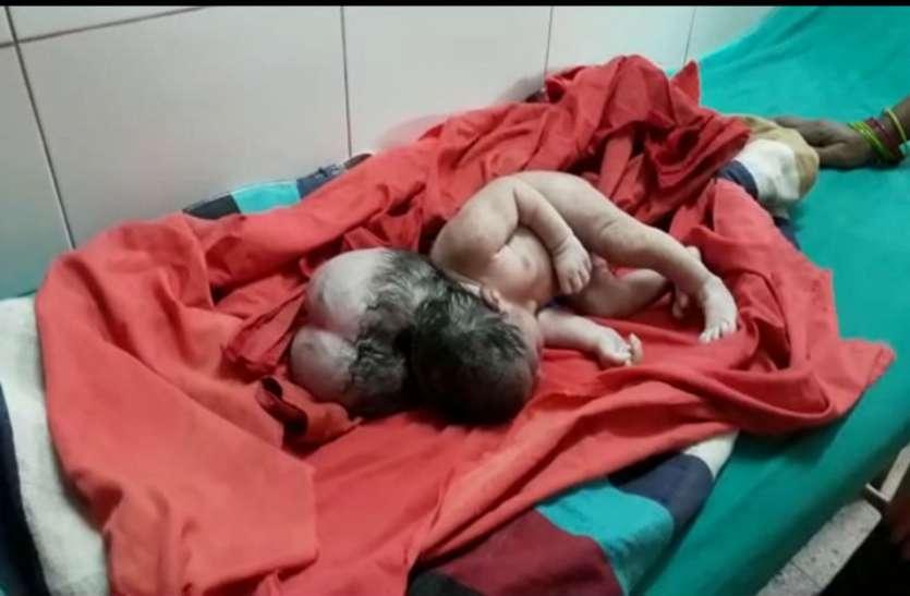 एटा में महिला ने तीन सिर की बच्ची को दिया जन्म