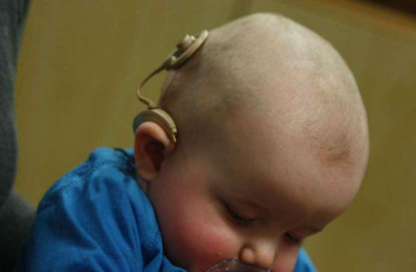 Cochlear implant Surgery योगी सरकार छह लाख रुपये का ऑपरेशन फ्री में करा रही, नोट करें तारीख