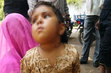 बच्ची की गर्दन पर पिता ने चलाई ब्लेड , पत्नी ने  दर्ज कराई शिकायत