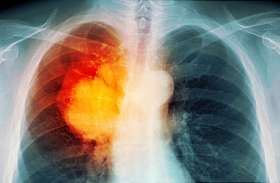 आईआईटी की तकनीक शुरू में ही खोज लेगी फेफड़े का कैंसर