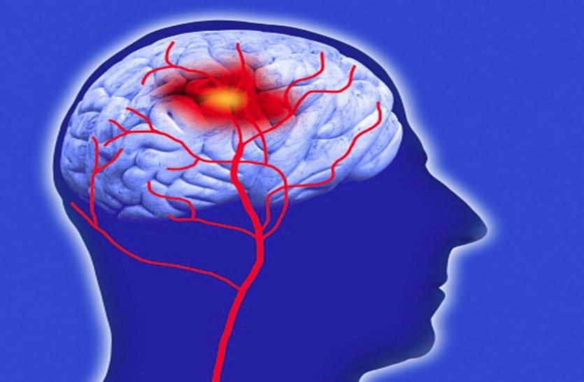 ऑक्सीजन व पोषण की कमी से हाेता है दिमागी स्ट्रोक