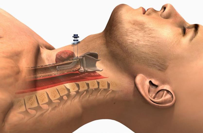 Tracheostomy: कृत्रिम सांस देकर बचाई जा सकती है मरीज की जान, जानें कैसे
