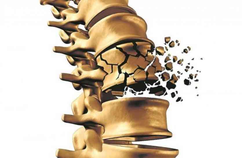कमजोर हड्डियों को इन तरीकों से करें मजबूत