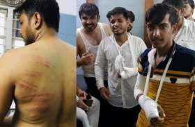 Rampage : कलेक्ट्रेट का घेराव करने पहुंचे एबीवीपी कार्यकर्ताओं को पुलिस ने दौड़ा-दौड़ा कर पीटा  : देखें वीडियो