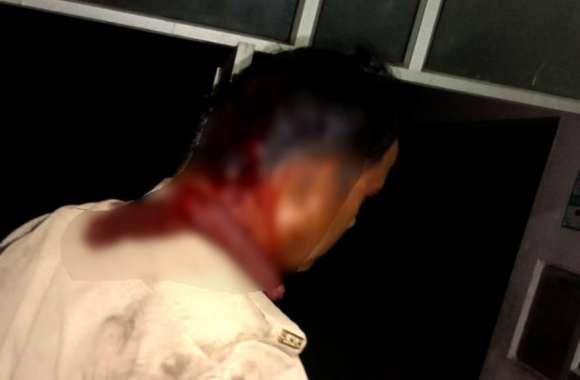 प्रतापगढ़ के कुंडा में पुलिस टीम पर हमला, कई पुलिस वाले गंभीर रूप से घायल, गांव पहुंची फोर्स