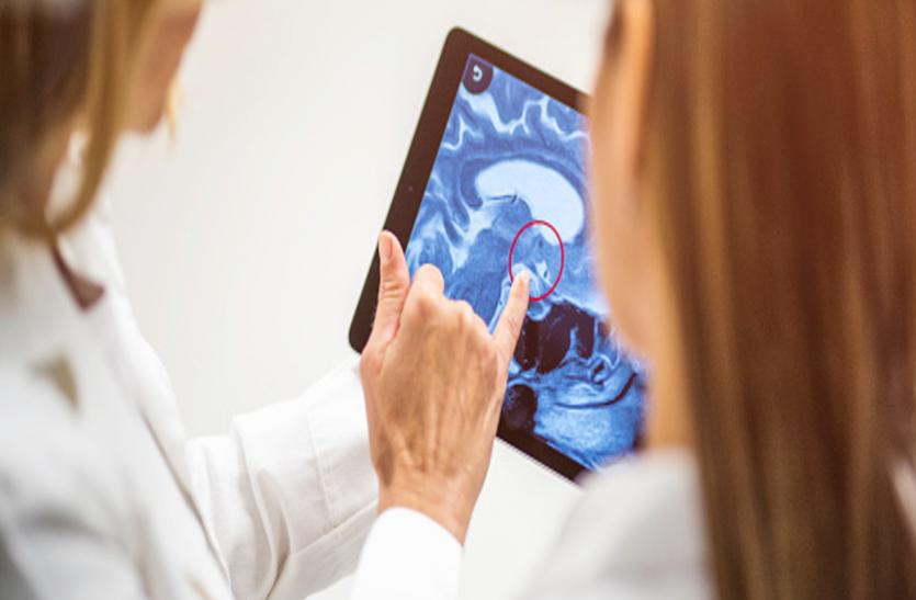 हर मरीज में एक जैसे नहीं हाेते बे्रन ट्यूमर के लक्षण, जानिए सच