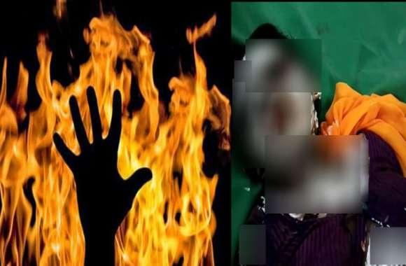 हैवान पति ने पत्नी को जिंदा जलाया, 90 फीसदी झुलसी महिला, हालत गंभीर