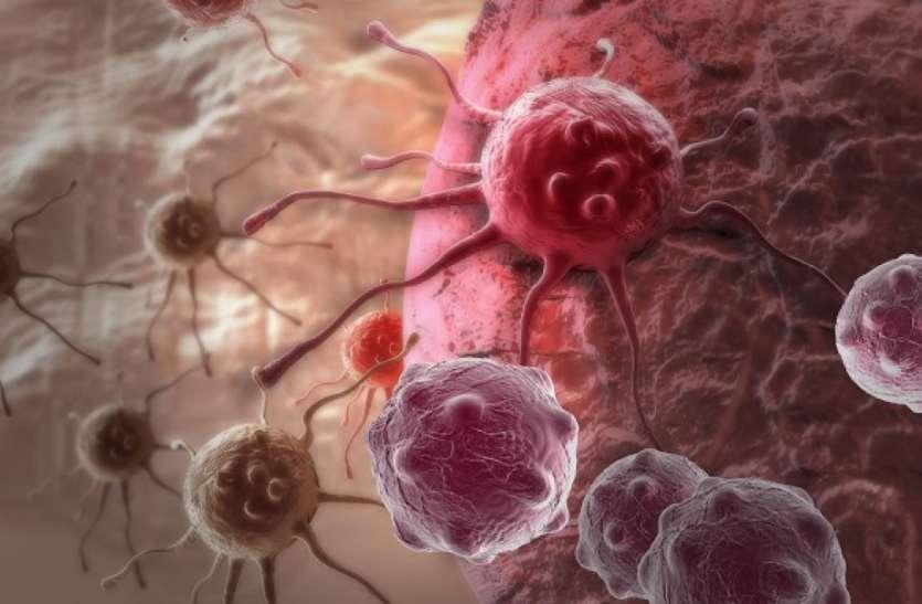 वैज्ञानिकों ने खोजा स्तन कैंसर का इलाज, फैलने से रोकने के लिए कैंसर सेल्स को बदला फैट सेल्स में