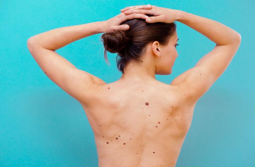 त्वचा में दिखाई दें ये बदलाव तो हो सकता है स्किन कैंसर