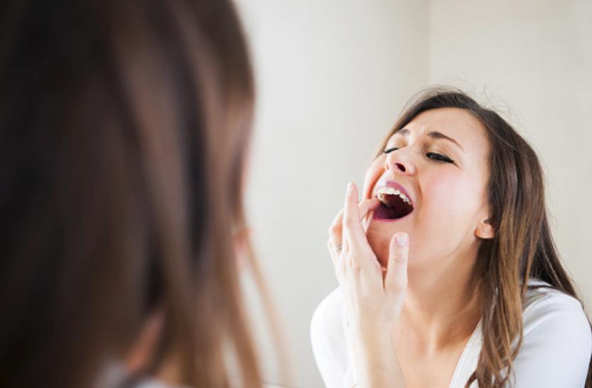 कमजोर इम्यूनिटी से होते हैं मुंह में छाले
