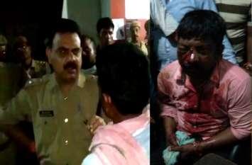 पुलिस की पिटायी से भाजपा पदाधिकारी के भाई की हालत नाजुक, विवाद के बाद आधा दर्जन लोगों पर टूट पड़े पुलिस वाले