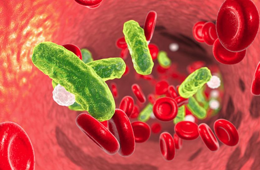 Septicemia - खून में इंफेक्शन से फैलता है सेप्टीसीमिया, ये हाेते हैं लक्षण