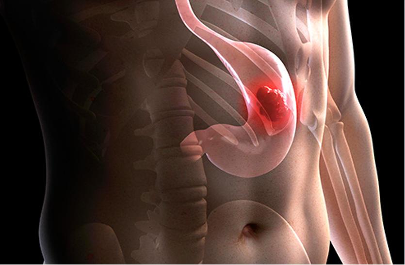 धूम्रपान व एसिडिटी की वजह से भी हो सकता है फूडपाइप का कैंसर