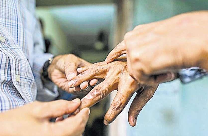 leprosy patients in ratlam कुष्ठ रोगियों के लिए सबसे बड़ा सर्वे: रतलाम में दो हजार नए कुष्ठ रोगी मिलने की संभावना