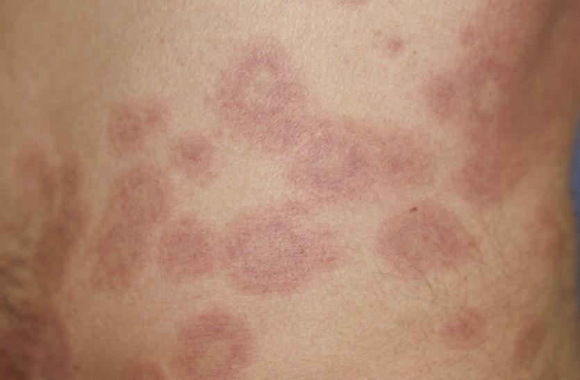 एसएलई राेग - शरीर पर हाे जाते हैं लाल चकत्ते, महिलाआें काे ज्यादा समस्या