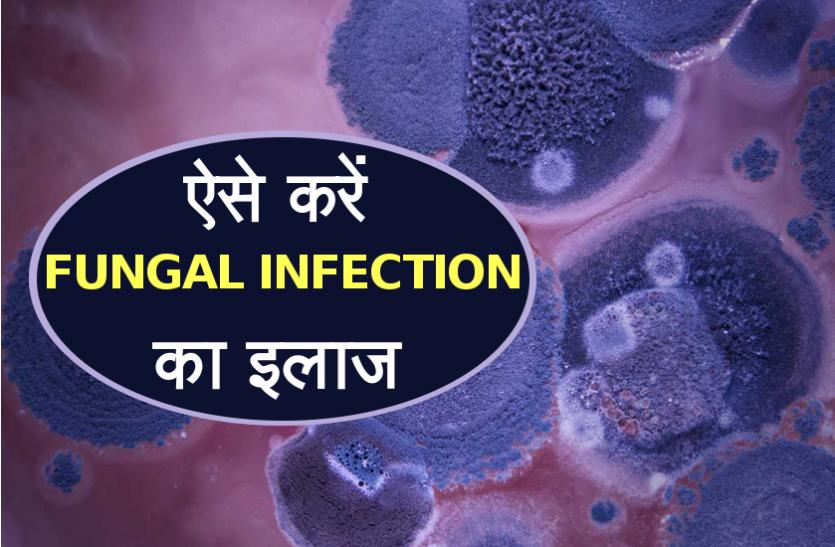 मॉनसून में Fungal Infection से हैं परेशान, एक बार ज़रूर जान लें ये घरेलू उपचार