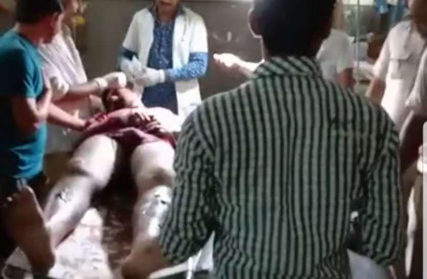 डूंगर कॉलेज के छात्र पर जानलेवा हमला, हाथ-पैर तोड़े, सिर फोड़ा