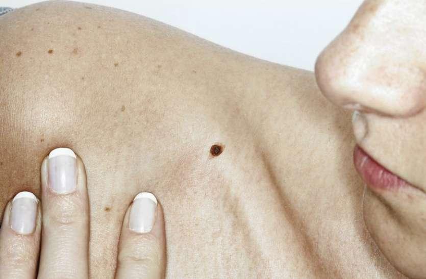 अगर तिल अपना रंग और आकार बदल रहा है तो हो जाएं सावधान, हो सकता है कैंसर का लक्षण