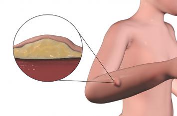 लाइपोमा: बिना दर्द की चर्बीवाली गांठें, न करें नजरअंदाज