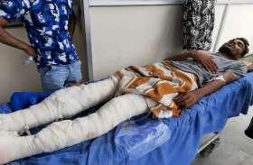 प्रोपर्टी विवाद : पुरानी रंजिश को लेकर तोड़े युवक के पैर, चाकू से गोदा, नाजुक हालत में जिंदगी के लिए कर रहा संघर्ष