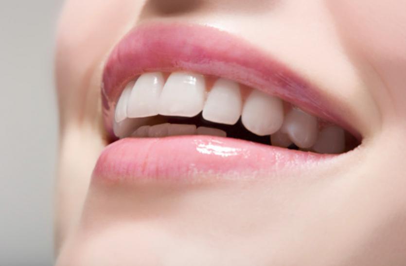 Oral hygiene Tips: घरेलू नुस्खाें से मिनटाें में पाएं साफ चमकदार दांत